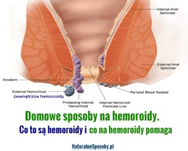 naturalnespososby.pl-domowe-sposoby-na-hemoroidy-co-to-sa-hemoroidy-co-pomaga