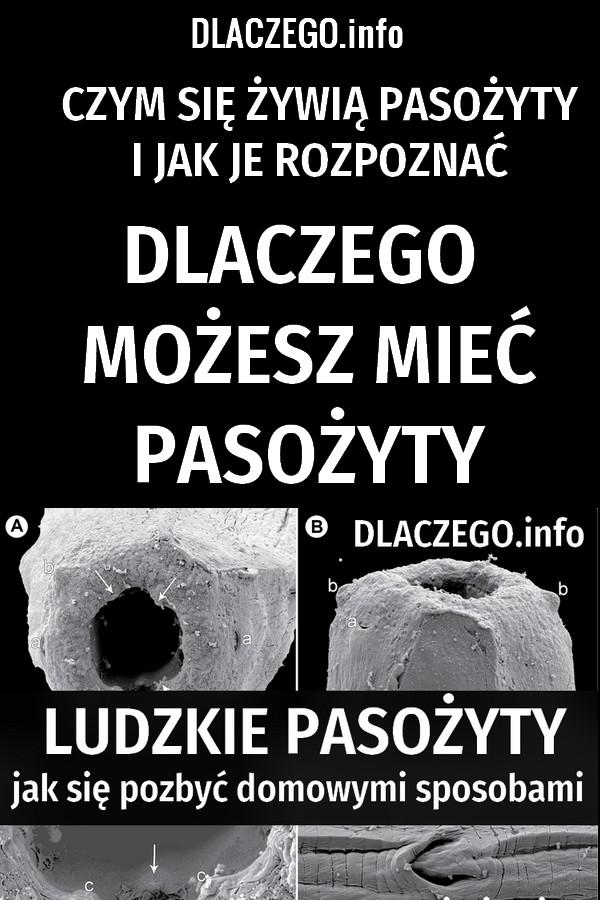 dlaczego.info-pasozyty-objawy-domowe-sposoby