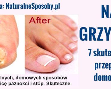 naturalnesposoby.pl-GRZYBICA-PAZNOKCI-I-STOP-DOMOWE-SPOSOBY-PRZEPISY
