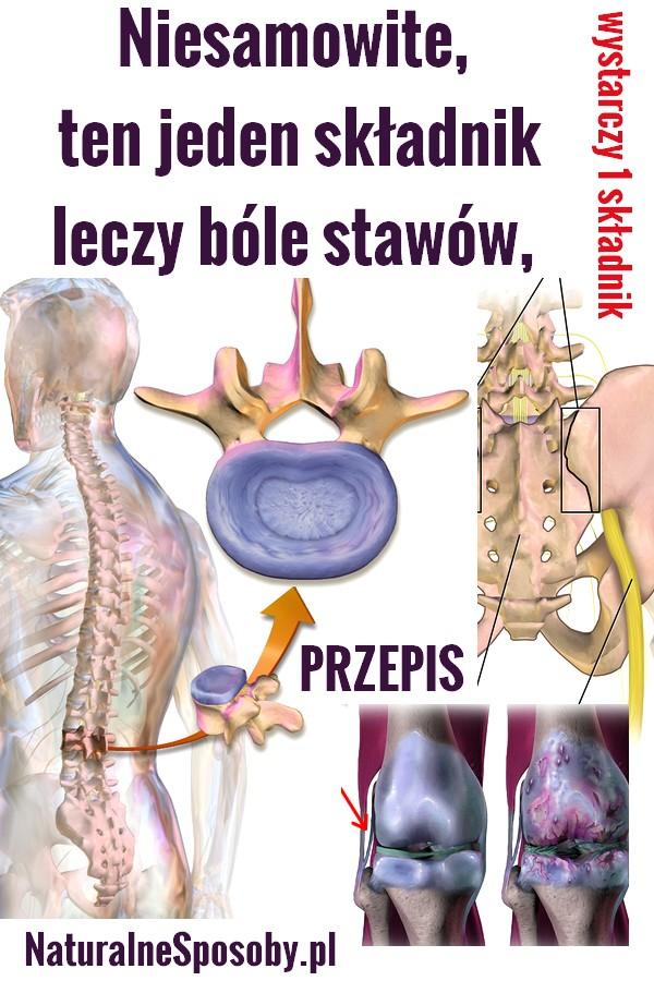 naturalnesposoby.pl-na-bole-stawow-1-skladnik-babciny-PRZEPIS